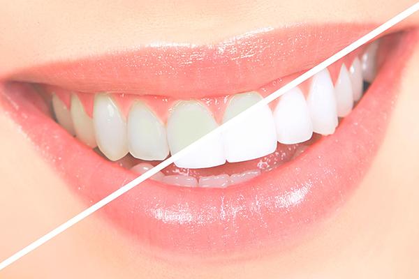Nefes, Diş ve Ağız Bakımı - Kişisel Bakım- Güzellik - bakımlı görünmek